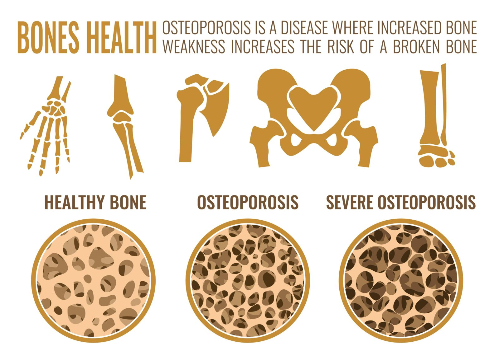infographic about osteoporosis