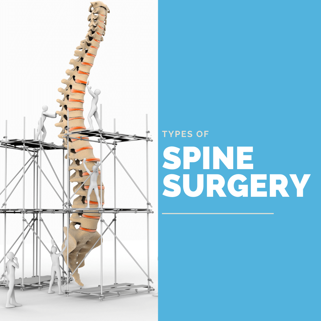 Types of spine surgery