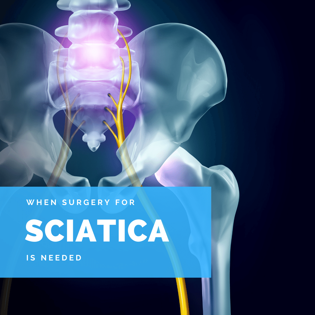 When surgery for sciatica is needed