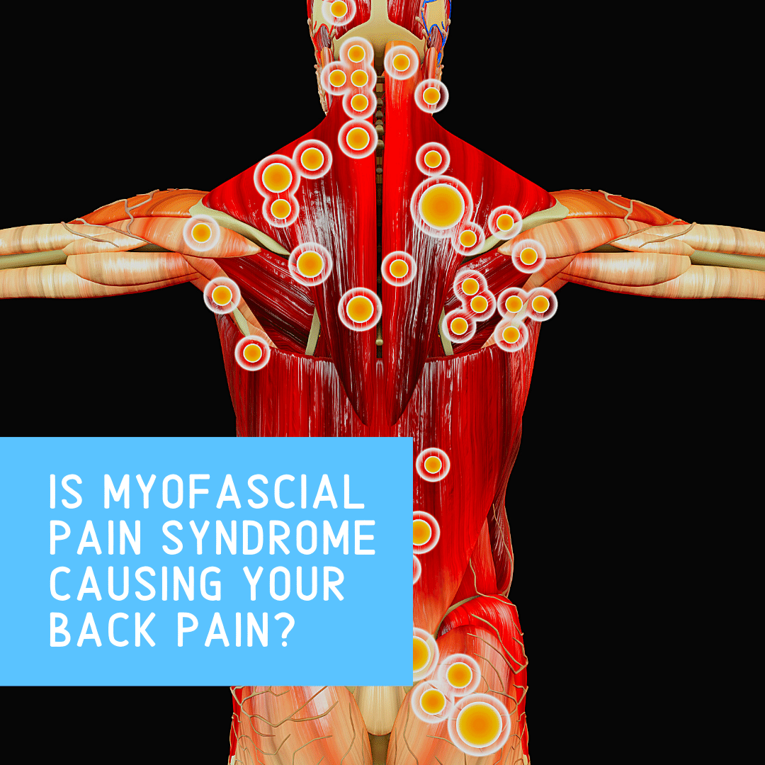 Is myofascial Pain Syndrome Causing Your Back Pain_