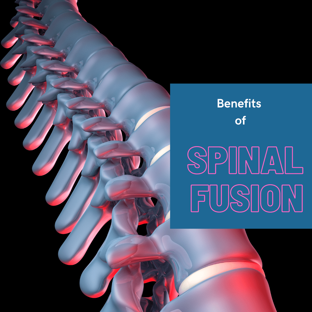 Benefits of spinal fusion