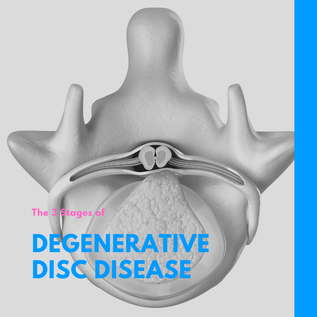 The 3 Stages of Degenerative Disc Disease
