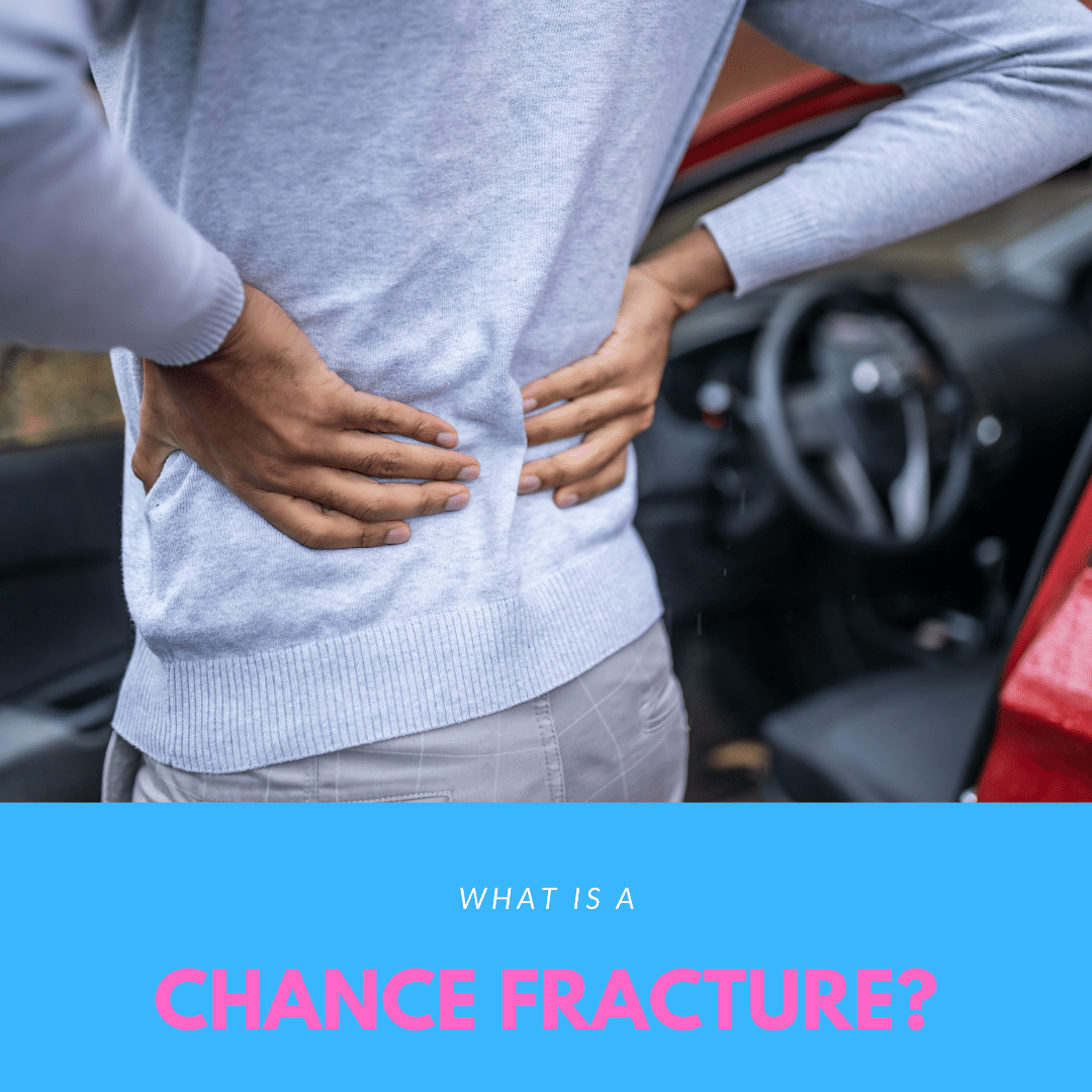 What is a Chance Fracture
