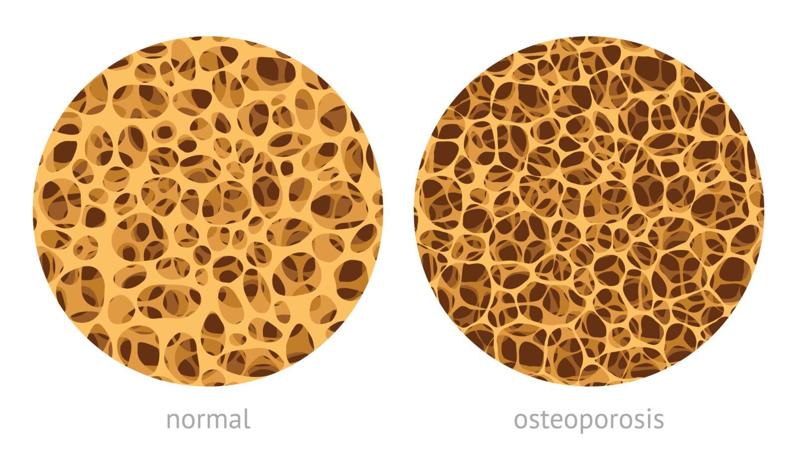 normal bone vs. osteoporosis