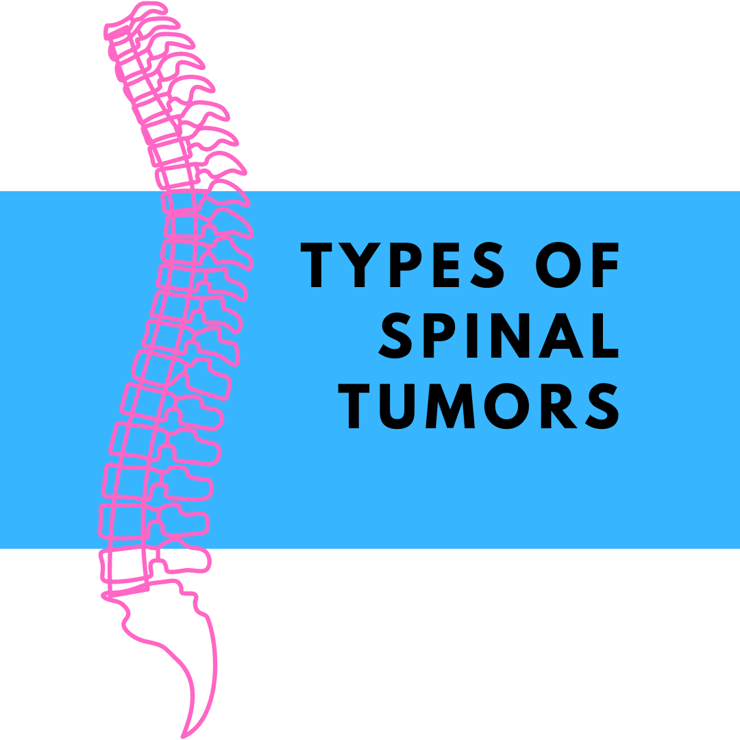 Types of Spinal Tumors