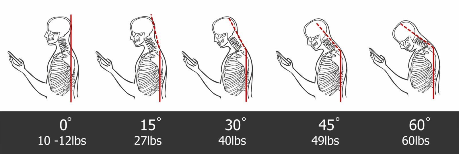poor posture  and neck strain