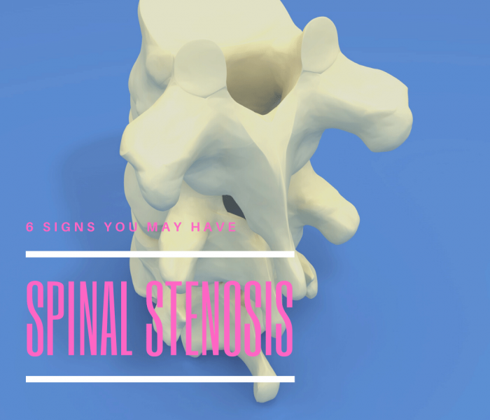 6 Signs You May Have spinal stenosis
