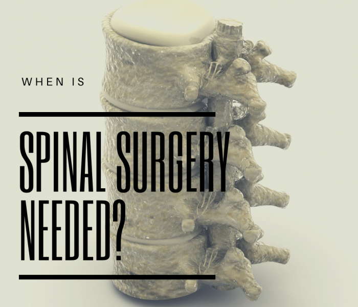 when is spinal surgery needed